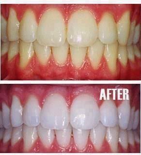 Как сделать ваши зубы белоснежными в домашних условиях